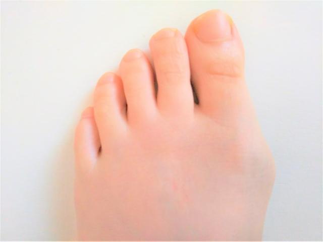 外反母趾に悩む女性の足